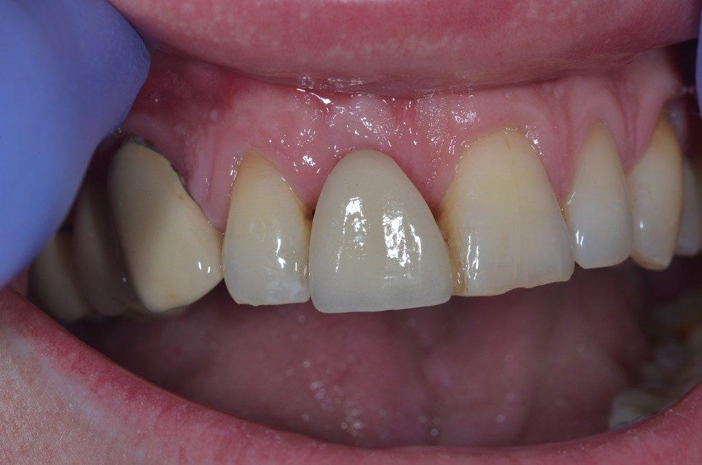 Before Dental Implant 2