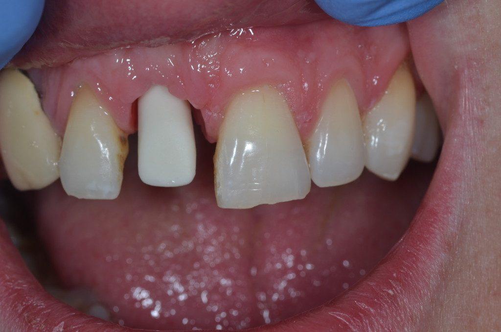 Dental implant cover