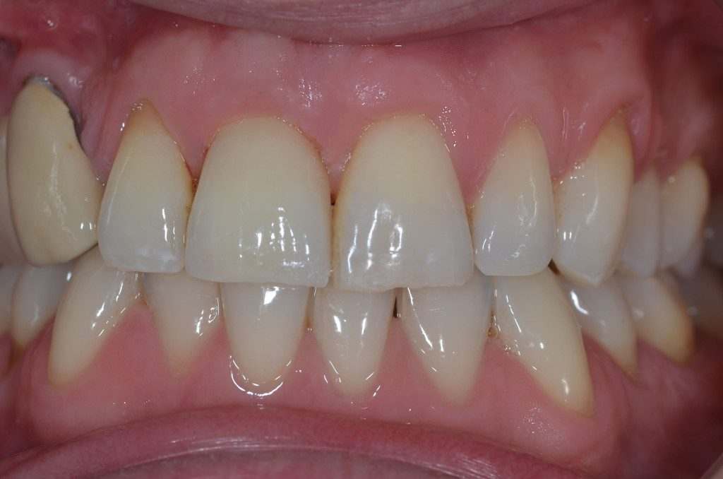 After dental implant is fitted