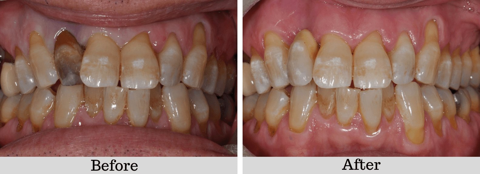 Adhesive-bridge before and after photos