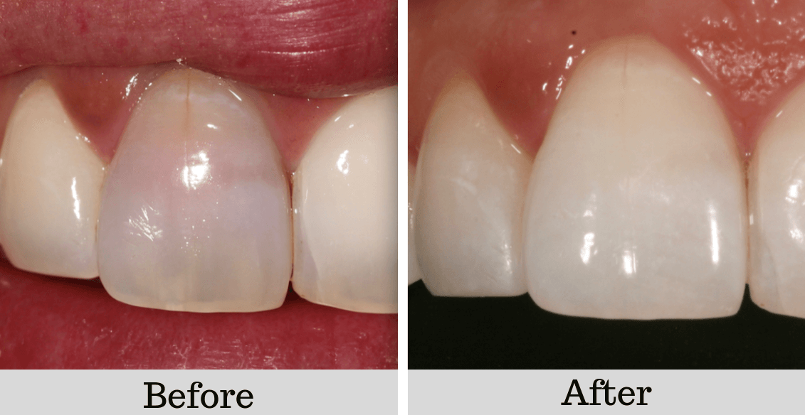 before and after photos bleaching teeth dorset