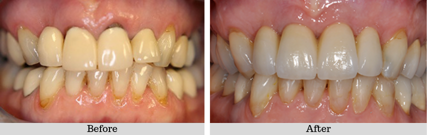 Front Implant Bridge
