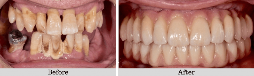 Full mouth fixed bridge Before And After