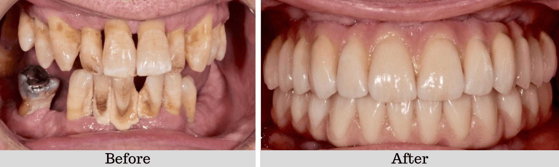 Full-mouth-fixed-bridge-Before-And-After