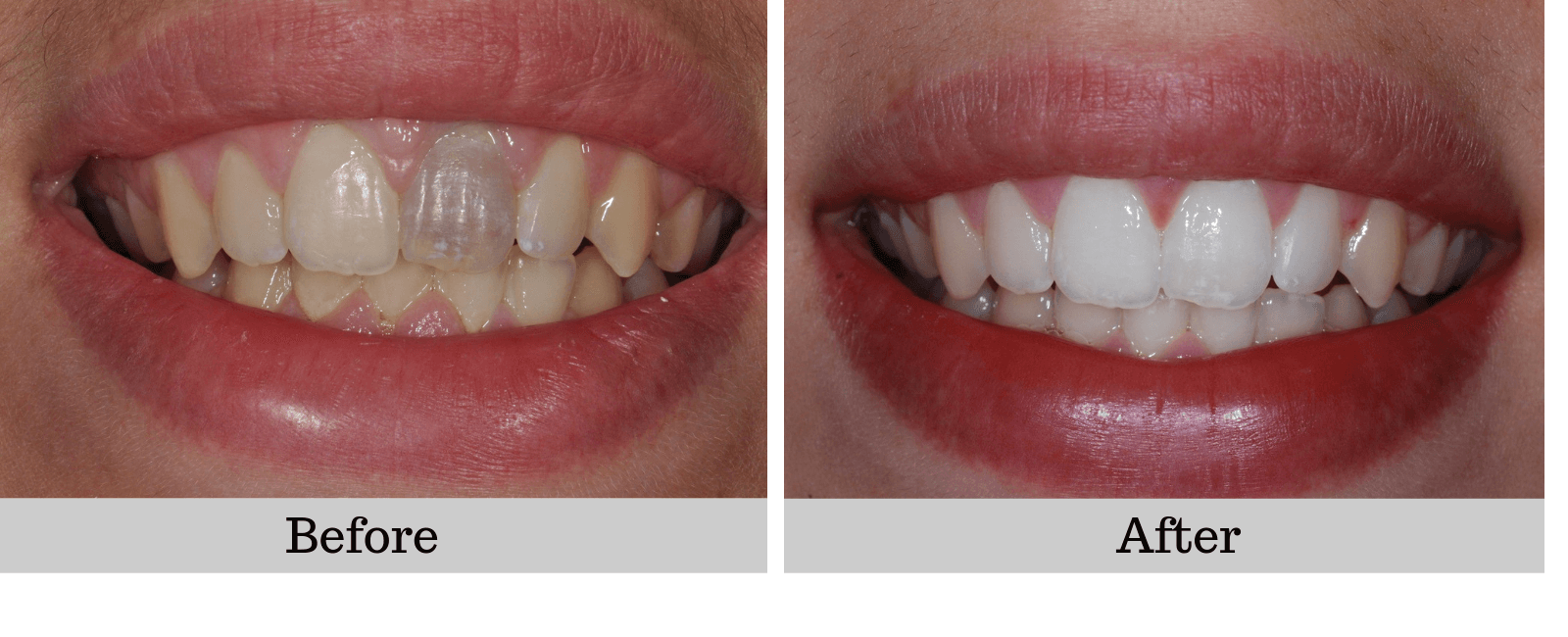 before and after photos Bleaching Teeth
