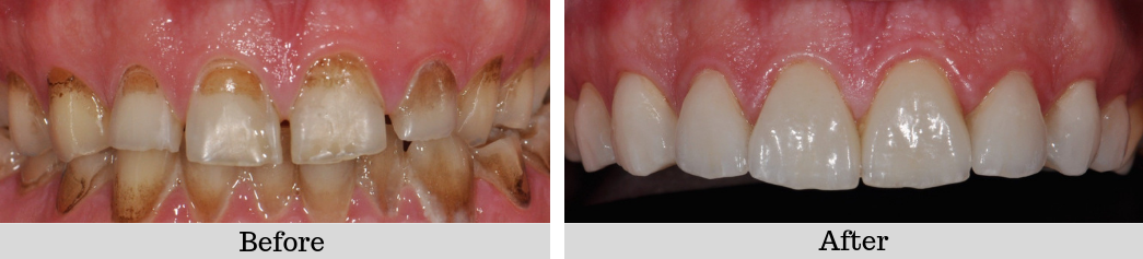 Veneers case 1 before and after