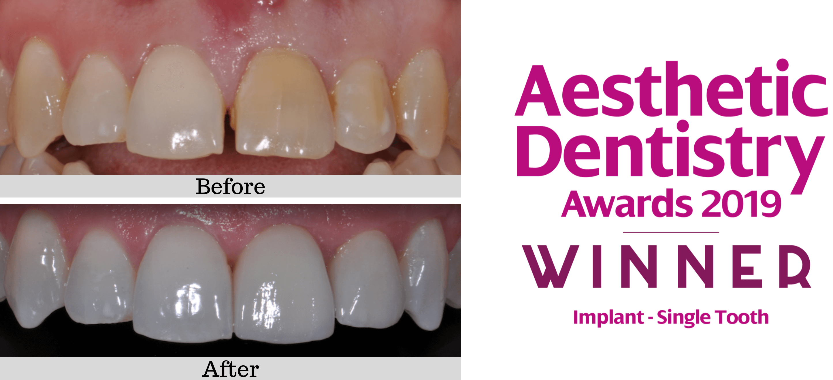 Single dental Implant before and after case 1