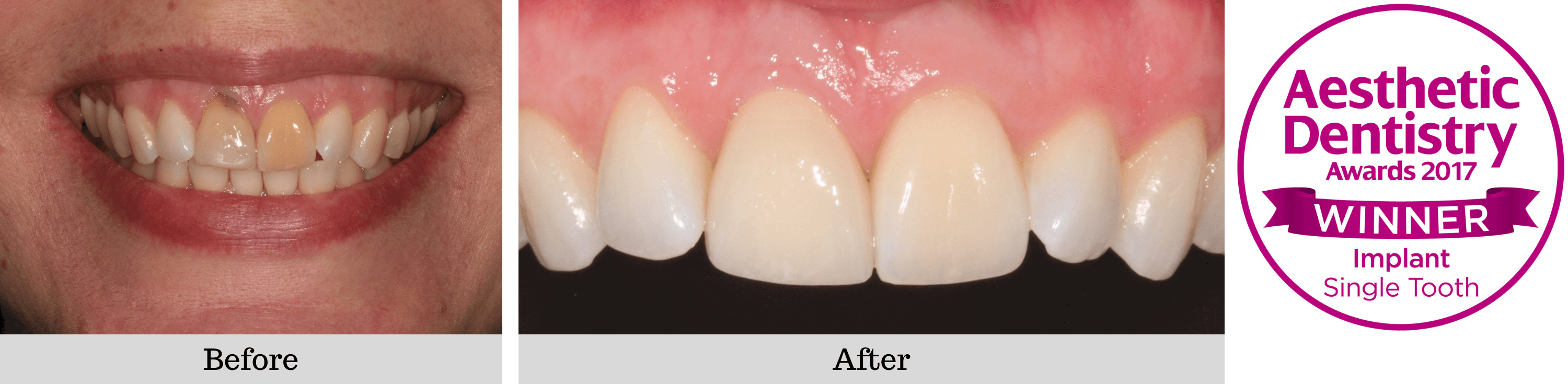 Single dental Implant before and after case 2