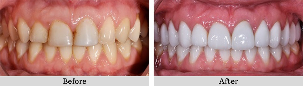 Veneers case 2 before and after