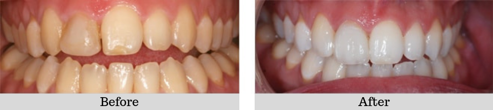 Veneers Case 3 before and after