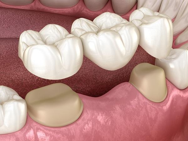 Dental-bridge-with-crown