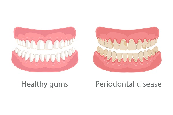 Gum disease and teeth, periodontal disease