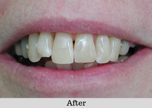 White-Fillings-Case-After