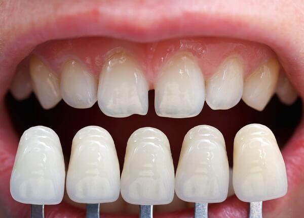 dental-veneers-costs